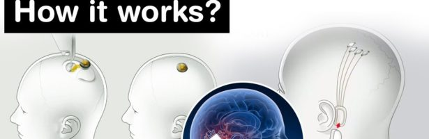 What is Neuralink technology and How it works? Science and Technology Current Affairs for UPSC
